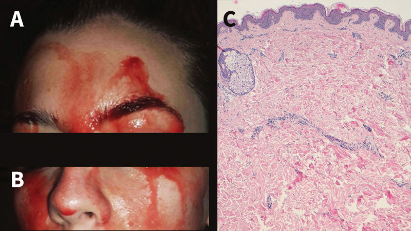 Rare case: patient in Italy sweating blood