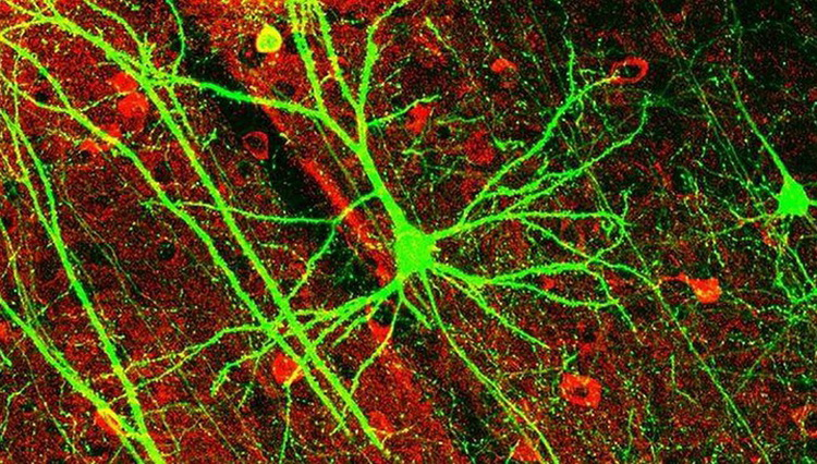 The classical picture of the neurons in the brain was wrong