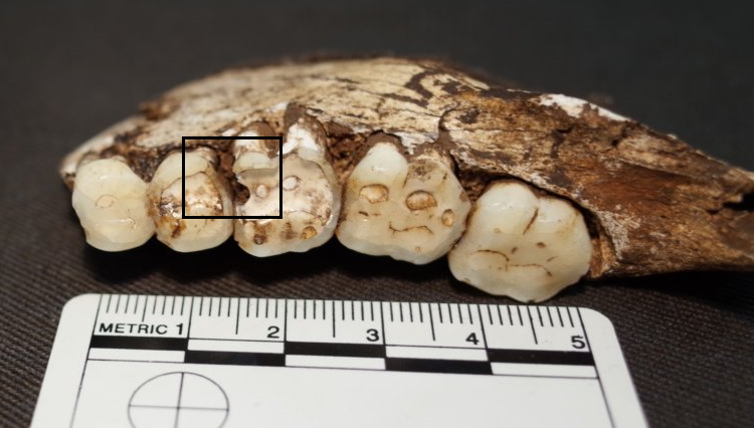 The sugar has nothing to do with it: our ancient ancestors had the same problems with their teeth