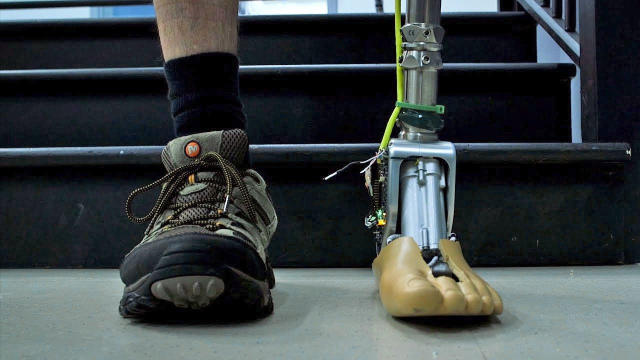 Designed an artificial ankle that adapts to irregular surfaces