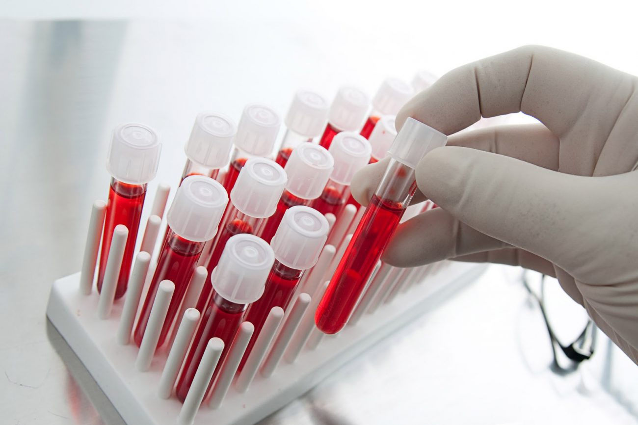 A new blood test will help to know about the risk of cancer recurrence