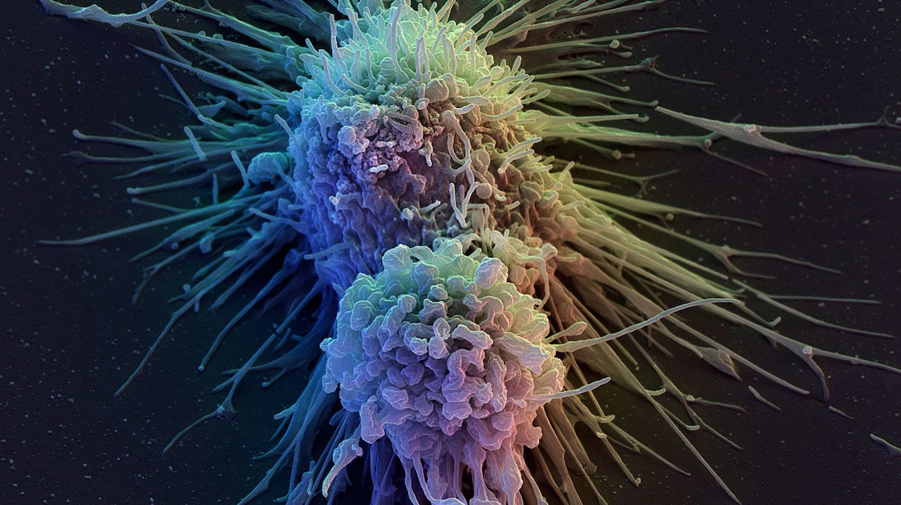From skin cells made of cells of the immune system. And it will help in the treatment of cancer