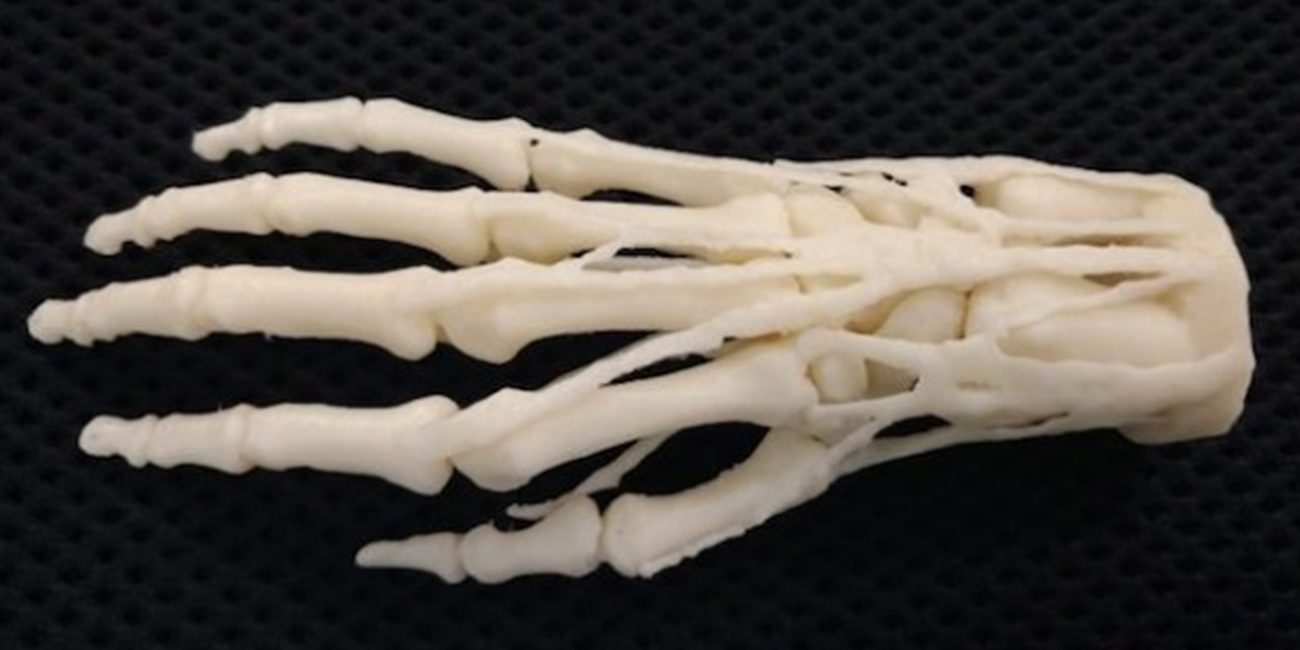American hospitals will begin to print the prosthetics on 3D printers