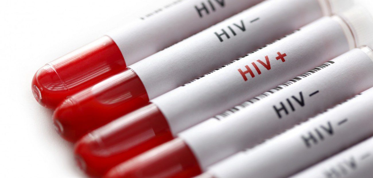 Designed test that will identify the dormant HIV