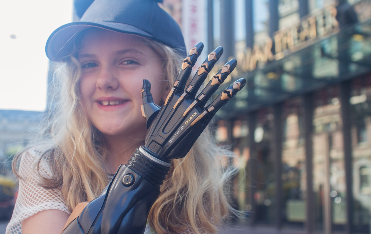 In the UK begun clinical trials of a biometric prosthetic