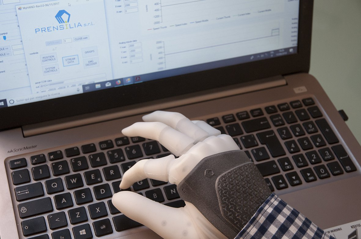 New intelligent prosthetic hand endowed with sensitivity and a high flexibility