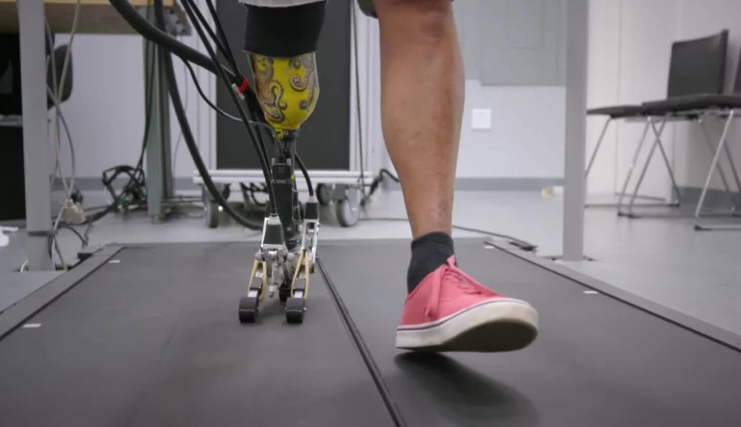 Designed prosthetic leg with realistic foot