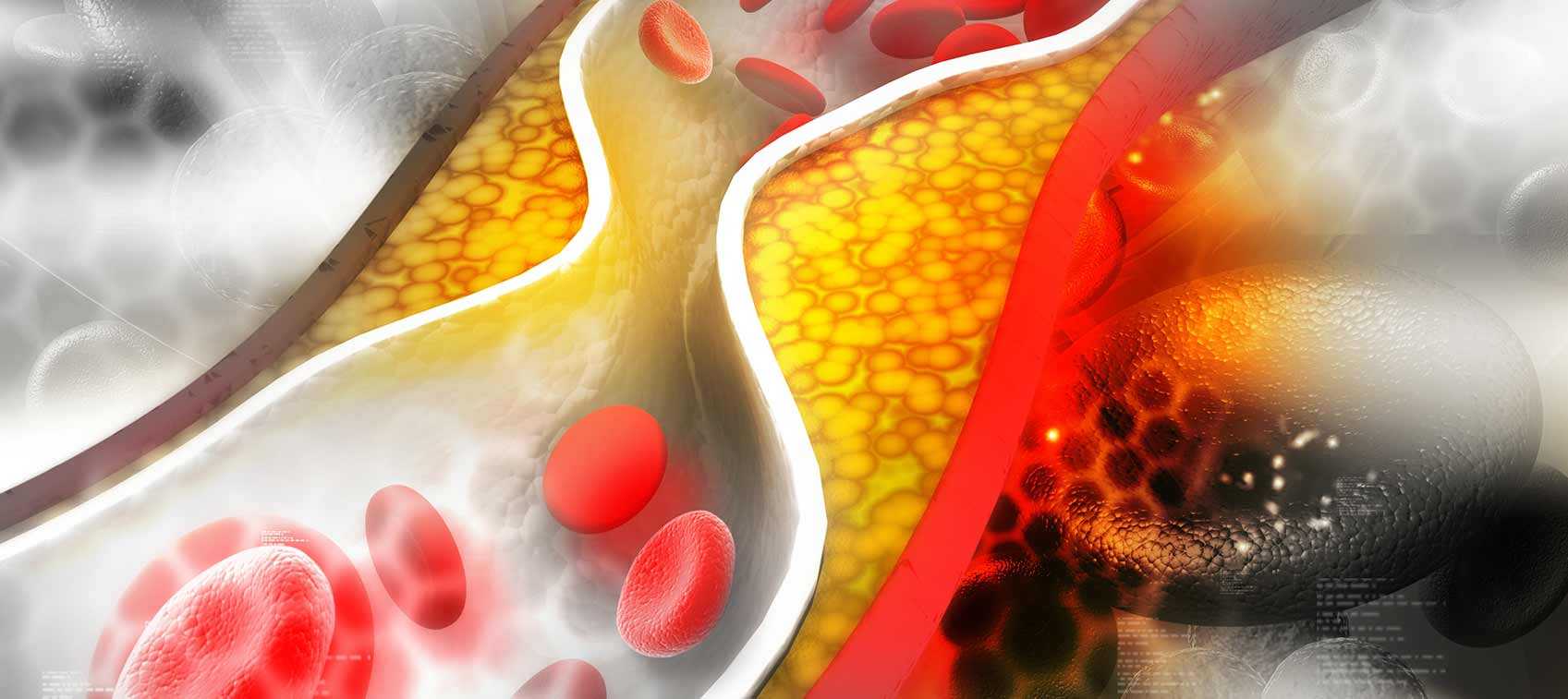 What is cholesterol and dangerous for health?