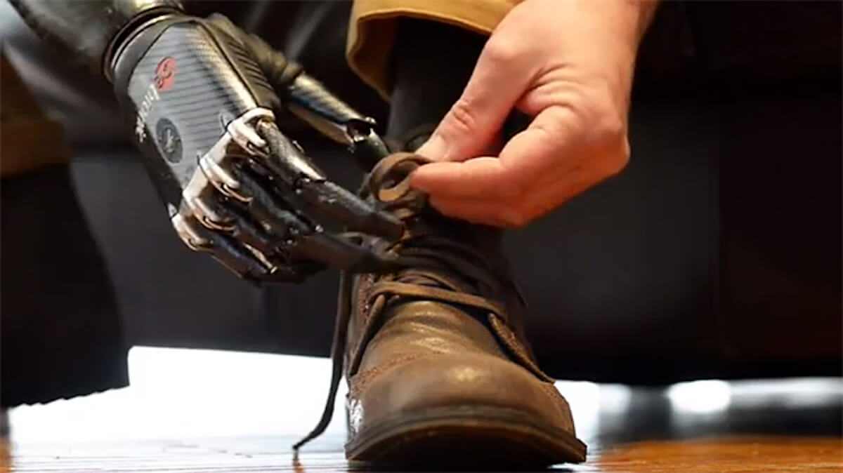 How artificial intelligence can improve prosthetic limbs