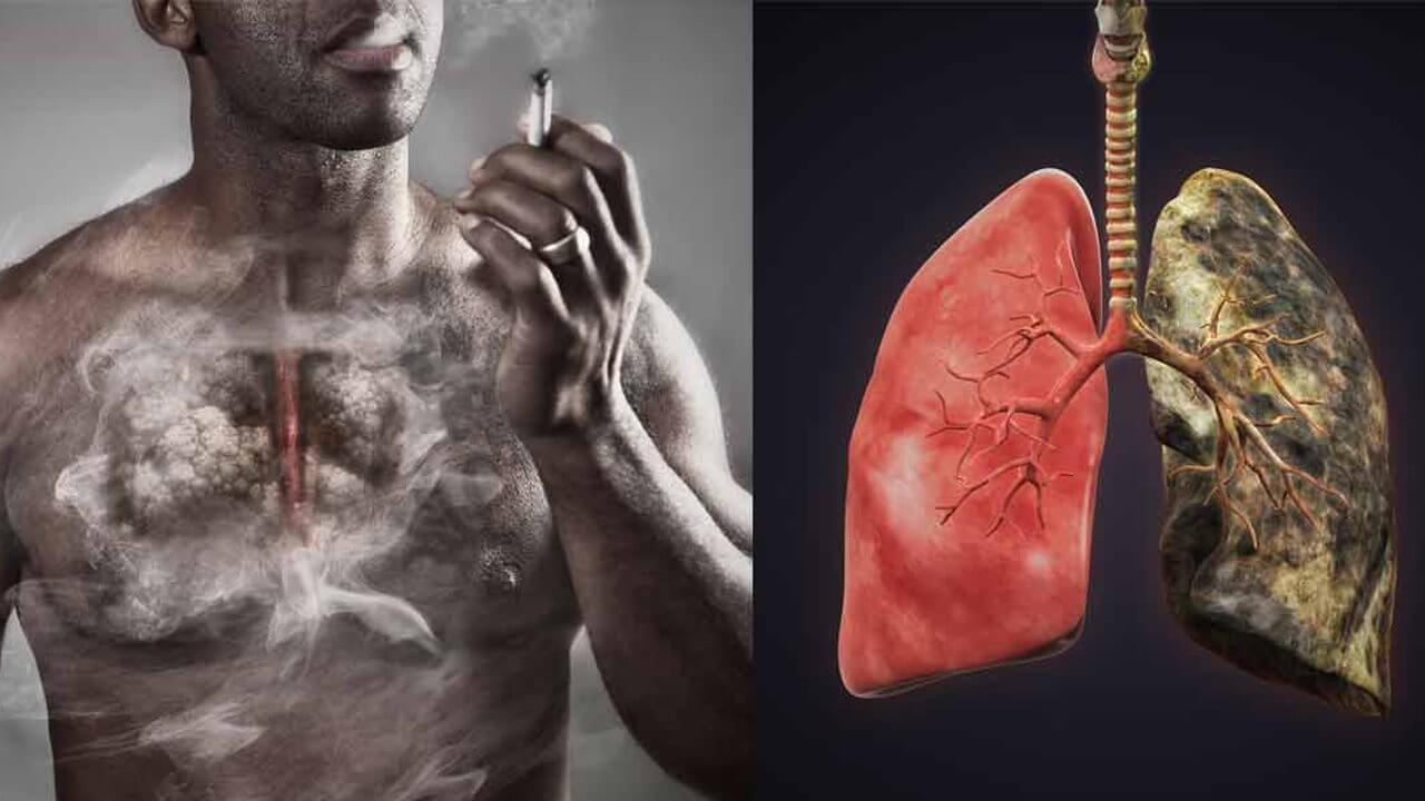 Restored if the cells of the lungs after people quit Smoking?
